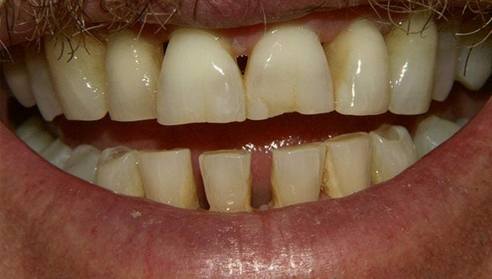 Before-Porcelain Veneers upper and lower anterior teeth to close spaces and improve color and proportion.