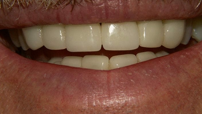 After-Porcelain Veneers upper and lower anterior teeth to close spaces and improve color and proportion.
