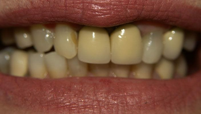 Before-Old, unnatural looking Porcelain crowns on two front teeth. Poor shape and symmetry of the lateral teeth. This was corrected with new All-Ceramic Crowns on the two front teeth and matching Veneers on the lateral teeth and one canine tooth. The other canine was a crown abutment to a bridge that the patient did not want to replace at the time.