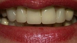 After-Old, unnatural looking Porcelain crowns on two front teeth. Poor shape and symmetry of the lateral teeth. This was corrected with new All-Ceramic Crowns on the two front teeth and matching Veneers on the lateral teeth and one canine tooth. The other canine was a crown abutment to a bridge that the patient did not want to replace at the time.