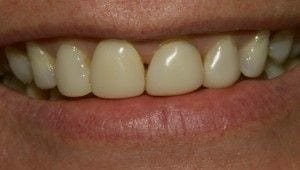 "Before-Old, discolored composite bonding on front four teeth were updated with Porcelain Veneers on upper six front teeth. ""Before my veneers I never smiled, I was so embarrassed of my teeth. Now I feel my smile is my best asset. I feel so much happier, I can laugh and smile with friends and never feel embarrassed."" J.F."