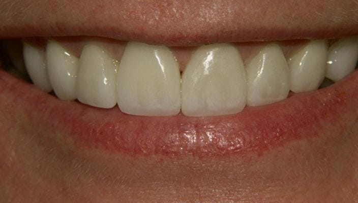 "After-Old, discolored composite bonding on front four teeth were updated with Porcelain Veneers on upper six front teeth. ""Before my veneers I never smiled, I was so embarrassed of my teeth. Now I feel my smile is my best asset. I feel so much happier, I can laugh and smile with friends and never feel embarrassed."" J.F."