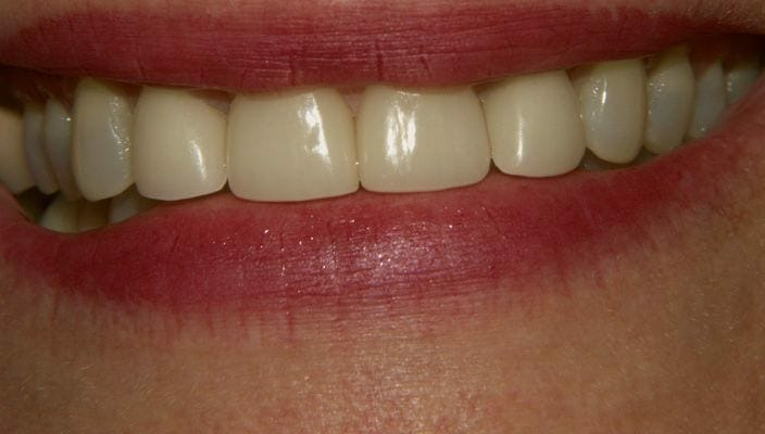 After-Spacing between front teeth and hair-line cracks in enamel were corrected with four Porcelain Veneers on anterior teeth.