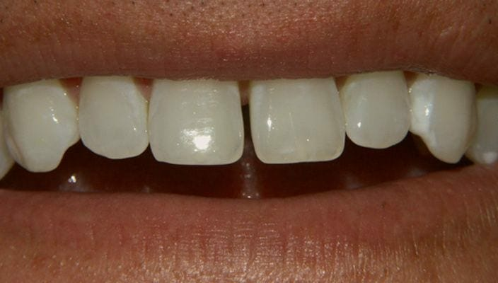 Before-Four Porcelain Veneers were used to close space, correct proportion, and improve color.