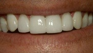 After-Four Porcelain Veneers were used to close space, correct proportion, and improve color.