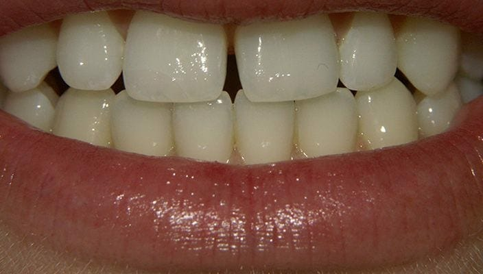Before-Direct Bonding with composite resin to close space that the Orthodontist was unable to close.