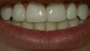 After-Direct Bonding with composite resin to close space that the Orthodontist was unable to close.