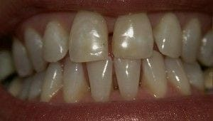 Before-Porcelain Veneers on upper and lower anterior teeth to close spaces, improve proportion, and improve color.