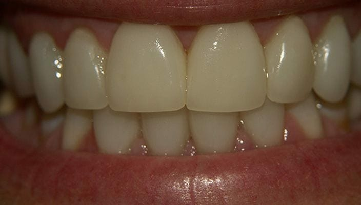 After-Porcelain Veneers on upper and lower anterior teeth to close spaces, improve proportion, and improve color.