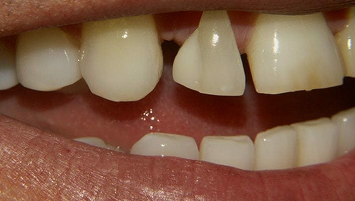 Before-Porcelain Veneers on upper anterior teeth were used to correct spacing and proportion issues.