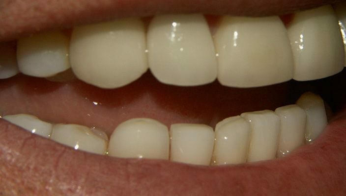 After-Porcelain Veneers on upper anterior teeth were used to correct spacing and proportion issues.