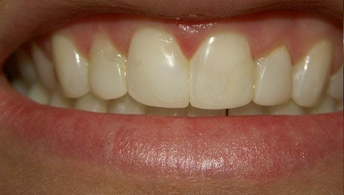 Before-Teeth with old composite bonding were upgraded to four Porcelain Veneers.