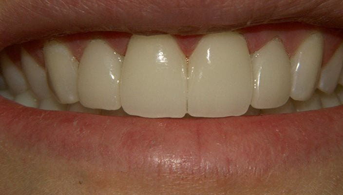 After-Teeth with old composite bonding were upgraded to four Porcelain Veneers.